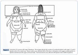 Where Does Lipedema Fat Accumulate