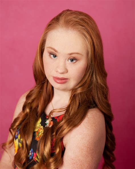 This 18 Year Old Model With Down Syndrome Is Planning To