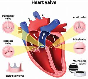 Aortic Valve Surgery  Tavr