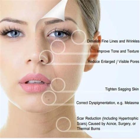 Microneedling Benefits | Microneedling, Improve skin