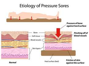 pressure ulcers bed sores health media