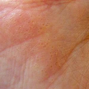Hand Eczema Or Dyshidrosis  This Is A Picture Of My Hand When I Have A Flare