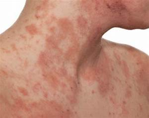 What Causes Itchy Rash All Over Body New Health Advisor