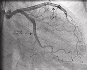 Left Main Coronary Artery Dissection  Extending To The Left Anterior