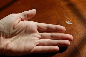 Healing Autoimmunity  My Hands Jan 2011