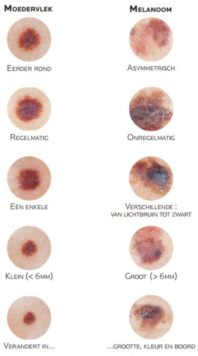 cancer peau photo le cancer de la peau