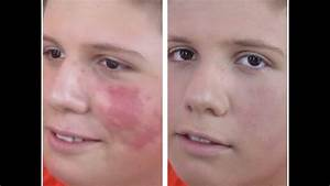 Tutorial  How To Cover A Birthmark  Tattoo With Makeup