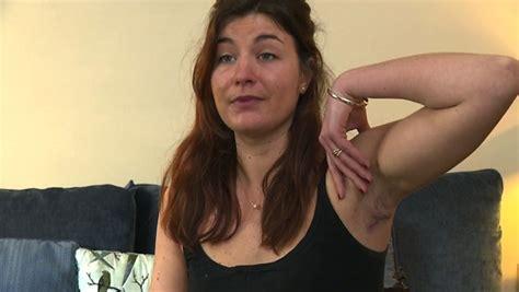foto de Maladie de Verneuil : une pathologie dermatologique