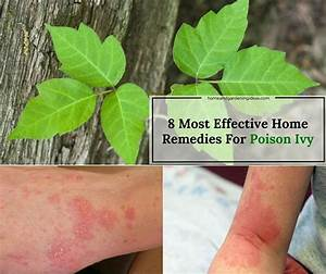 Poison Ivy Home Remedies: 8 Most Effective Remedies For