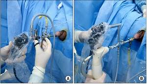 Technical Aspects Of Holmium Laser Enucleation Of The