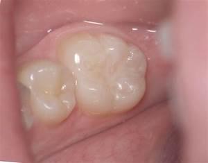 dental hygiene | Myteethnvd's Weblog