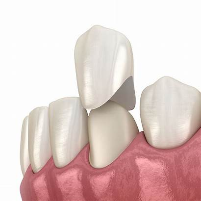 Crown Dental Crowns Tooth Services Dentistry Pain