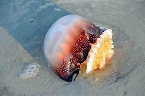Treating Jellyfish and Man-O-War Stings