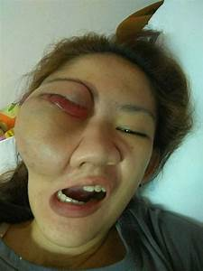 Shocking Pictures Show Young Woman U0026 39 S Eye Popping Out Of Her Head Due To Massive Untreated Tumour