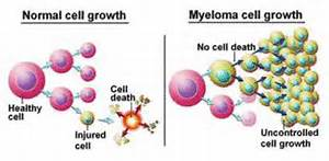 Multiple Myeloma (Myeloma, Plasma-Cell)  Multiple Myeloma Multiple Myeloma/Other Plasma Cell Neoplasms