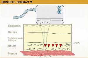 High Intensity Focused Ultrasound Hifu Face Lifting
