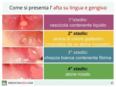 interno bocca afta in bocca su lingua e gengive 232 contagiosa cause e