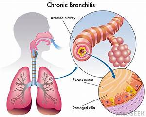 What Are The Copd Stages   With Pictures