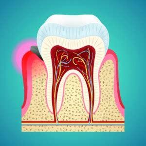 warning signs  periodontal gum disease