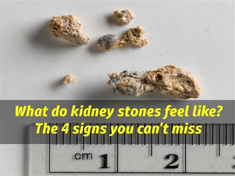 what do kidney stones feel like signs of kidney stones you can t miss