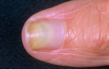 Infected Fingernail Bed by Nail Infection Gallery
