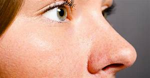 How To Reduce The Pore Size On Your Nose True Skin Care