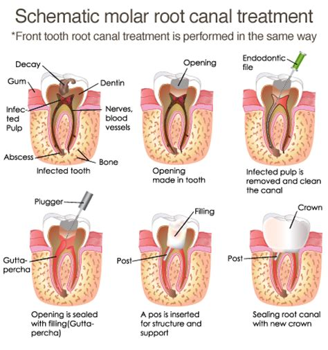 Root Canal Treatment, Napier  Dental On Raffles. Up Front Mortgage Insurance Irs Balance Owed. Los Angeles Car Donation New Medicine For Ms. Laurel Ridge Treatment Center. Nurse Practitioner Certification Requirements. Business Grants For Small Businesses. Communication Major Description. Disability Insurance Information. How To Get A Fha Mortgage Banks Intrest Rates