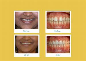 Invisalign Before & After - Upper Eastside