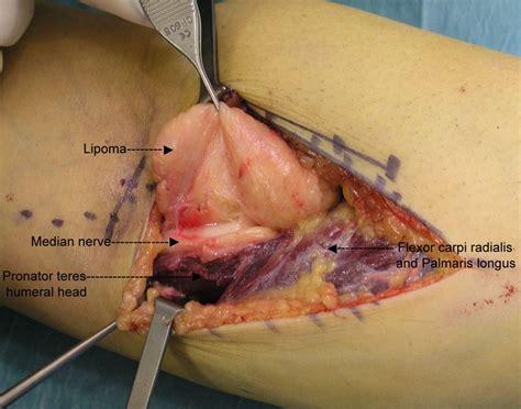 Lipoma Causes Symptoms Treatment Lipoma