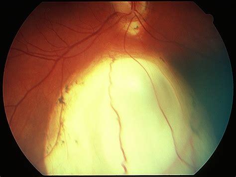 Coloboma - Retina Image Bank