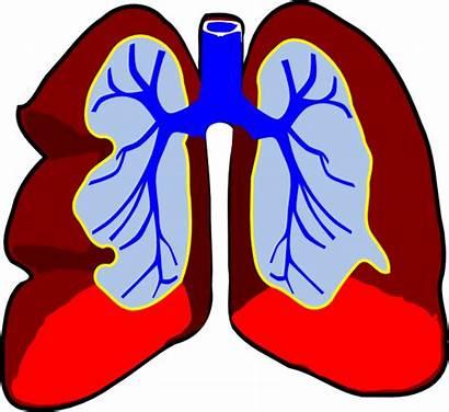 Lungs Respiratory System Asthma Cartoon Bad Breathing