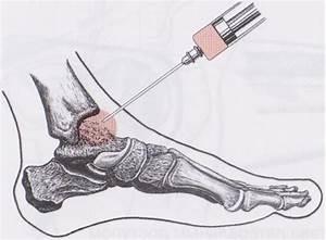 Иммуносупрессивные препараты при ревматоидном артрите