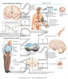 Vascular Dementia with Lewy Bodies