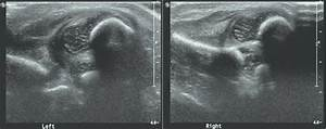 Coronal Ultrasound Of The Hip Shows Bilateral Hip Dislocation  The