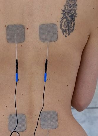 Transcutaneous Electrical Nerve Stimulator Tens