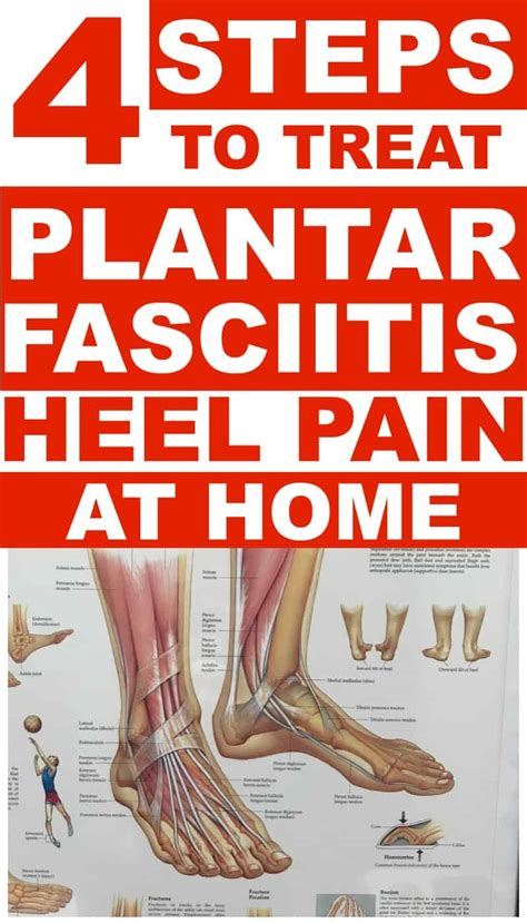 plantar fasciitis treatments     home  heel