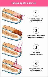 Как вылечить запущенный грибок ногтя