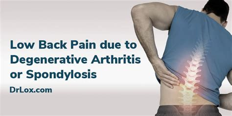 pain due  degenerative arthritis  spondylosis