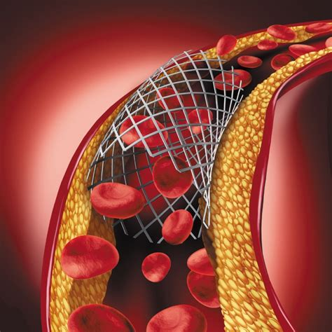 What Happens If My Stent Stops Working Harvard Health