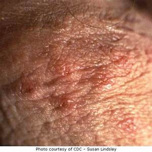 Pictures of Genital Herpes - See Our Gallery of Shocking ...