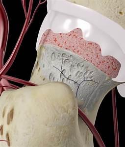 Медикаментозное лечение остеохондроз грудного отдела симптомы