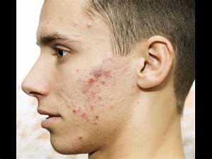 Skin Care For Men: Easy Tips To Get Rid Of Pimples ...