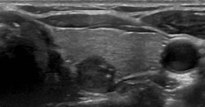 Transverse Ultrasound Image Of Thyroid Nodules  Ultrasound