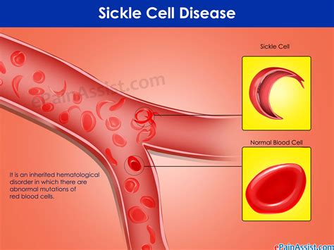 sickle cell disease driverlayer search engine