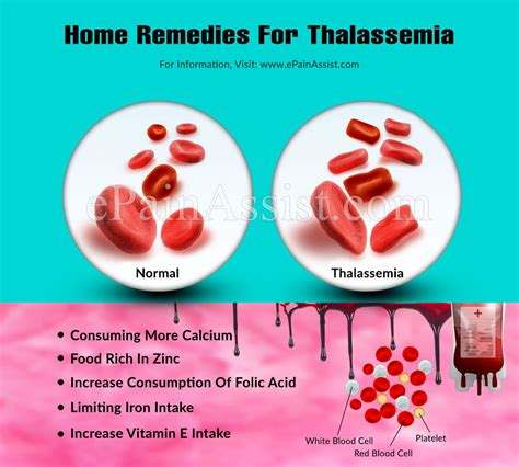Thalassemias are similar, in that they are caused by a genetic defect in one of the globin chains. Home Remedies For Thalassemia