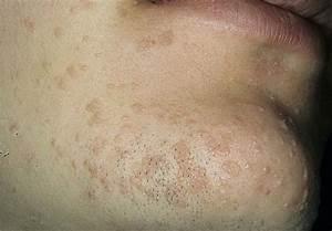 Бородавки на теле лечение мазь