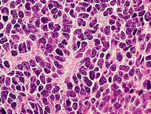 Medulloblastoma: a nasty tumor with a silver lining ...