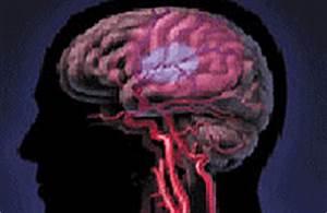 Хроническая гипертония головного мозга