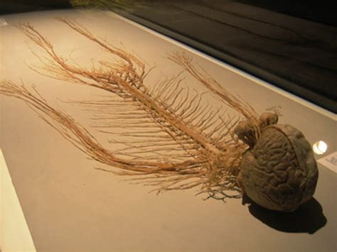 Dissected Human Nervous System