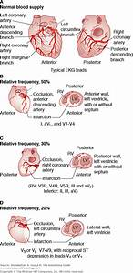 Chapter 200  Acute Myocardial Infarction  Complications